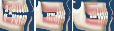 gnatologia odontoiatria cuneo